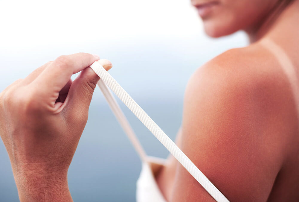 A Quick Guide to Sunburn Severity